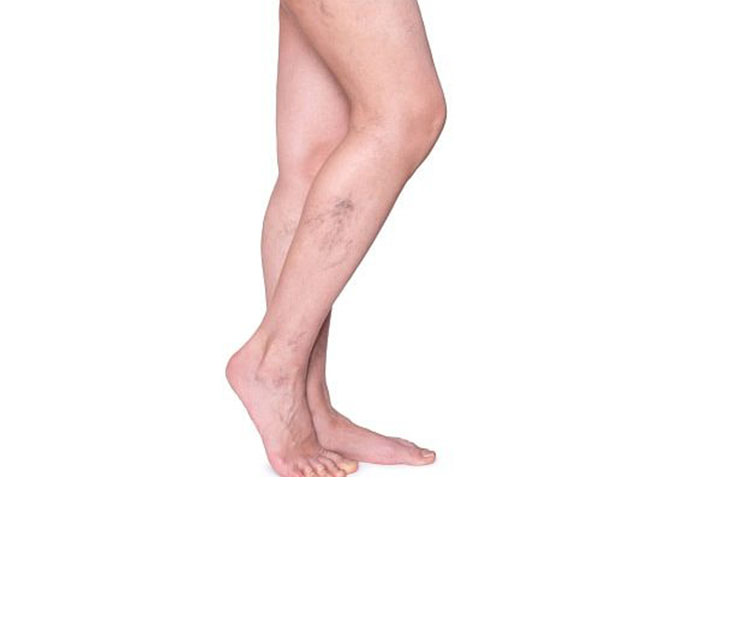 Relief From Hidden Signs of Poor Leg Circulation.